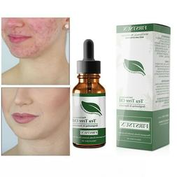 100% Tea Tree Pure Essential Oil Face Care Acne Treatment Oi