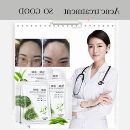 <font><b>Tea</b></font> Face mask Acne Facial Oil Control An