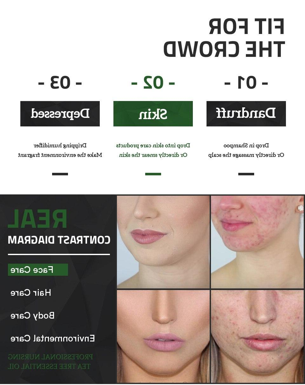 10ml fade font b acne b font
