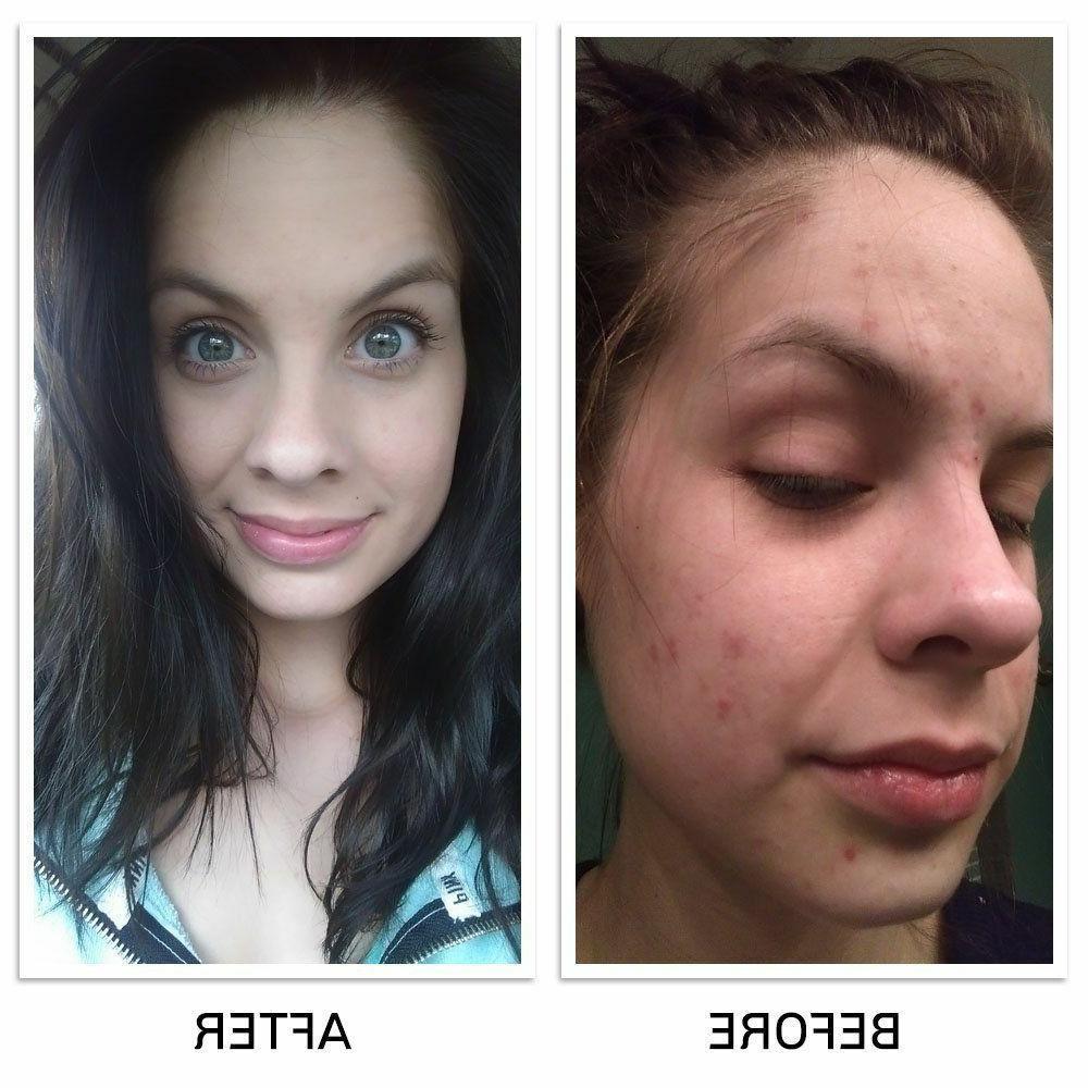 Large Keeva for Acne Treatment Step Formula