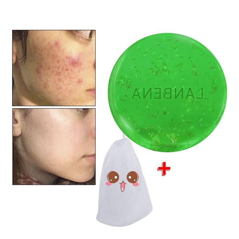 LANBENA 24K <font><b>Soap</b></font> <font><b>Tea</b></font> Cleansing Acne Treatment Remover Blackheads Anti-aging Whitening