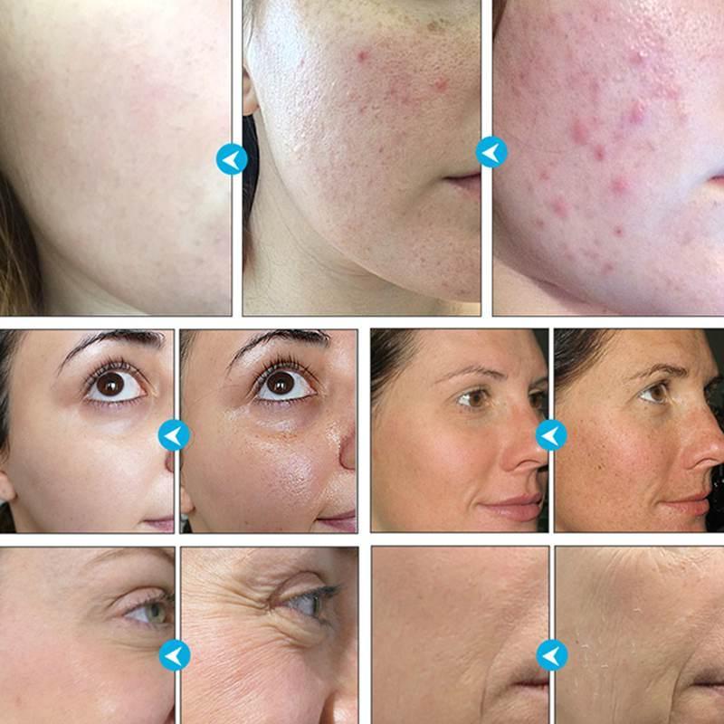 <font><b>Soap</b></font> Facial Cleansing Acne Moisturizing Remover Blackheads
