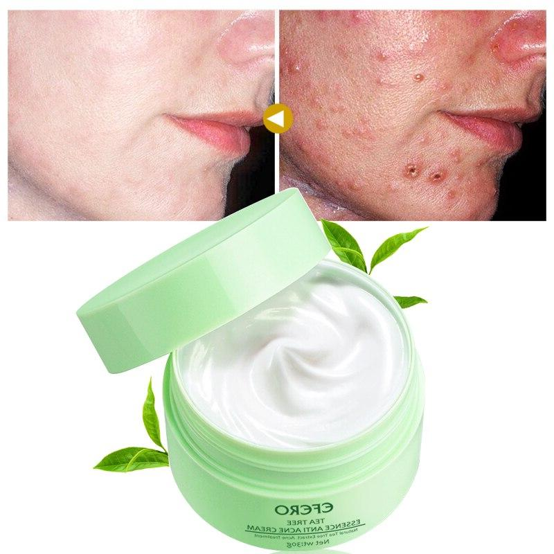EFERO <font><b>Acne</b></font> <font><b>Tree</b></font> Removal Skin Care Whitening Repair Pimple Remove <font><b>Acne</b></font> Shrink Pore Cream