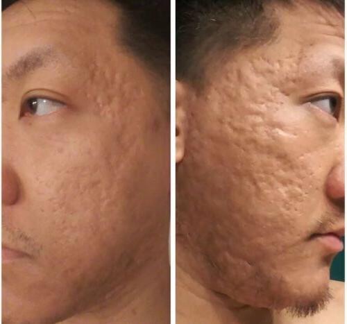 Keeva Acne Cream Scars For