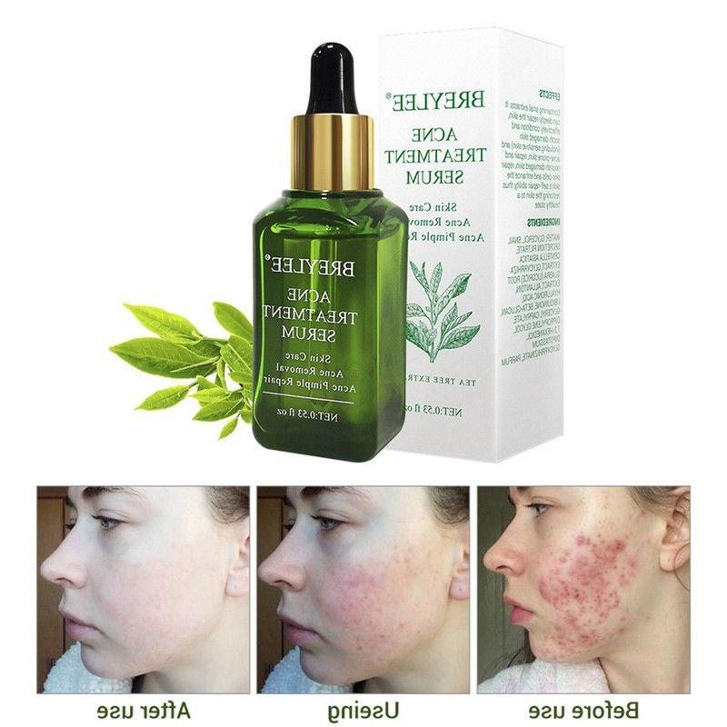 Tea Tree Care Skin Acne Treatment Oil Blackhead Remover Anti