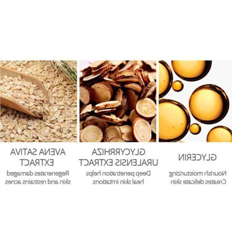 Tea Anti-acne Cream Scar Facial Acne 30ML