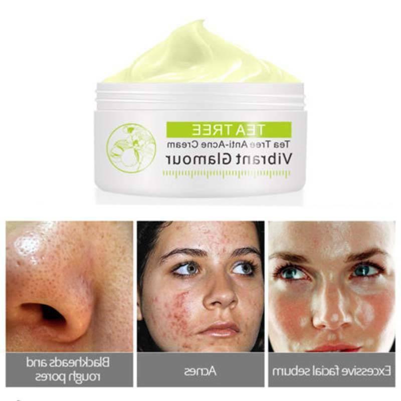 Tea Scar Shrink Facial Acne 30ML