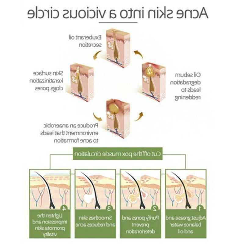 Tea Tree Scar Shrink Facial Acne Spot 30ML