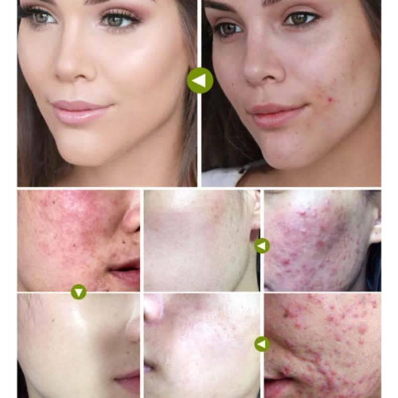 Tea Tree Anti-acne Scar Shrink Pores Facial Eliminate Acne 30ML