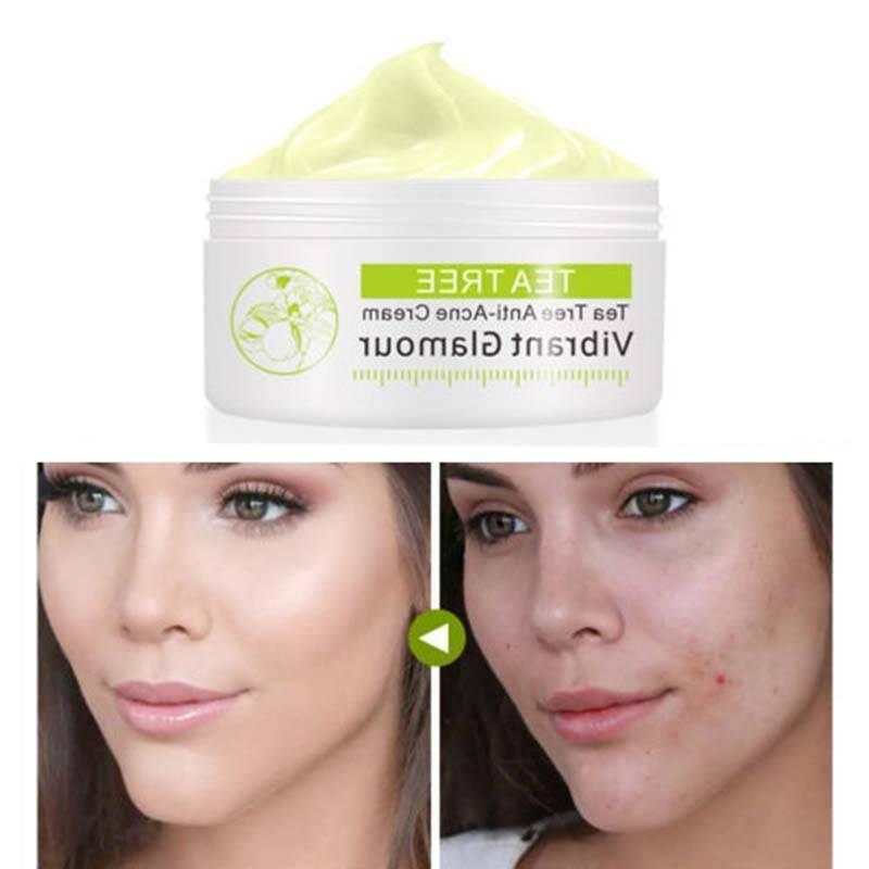 tea tree anti acne cream scar face