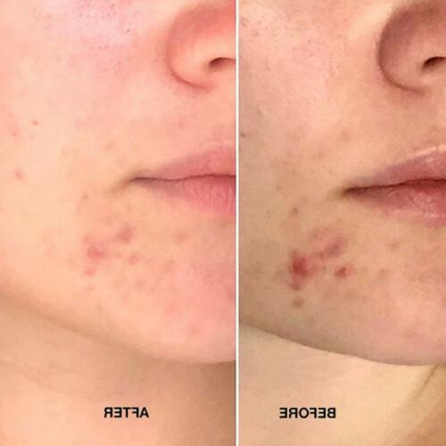 Tea tree Relief Serum Face Serum Oil-Control Smooth Scars Moisturizer